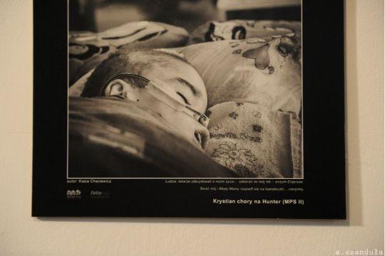 Obrazek dziecka chorego na Sanfilippo